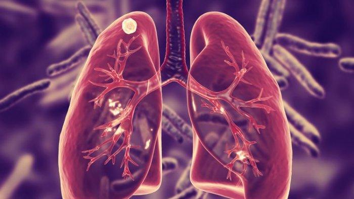 ILUSTRASI. Beberapa jenis virus bisa menyebabkan penyakit Bronkiolitis, termasuk di antaranya adalah virus flu dan pilek.
