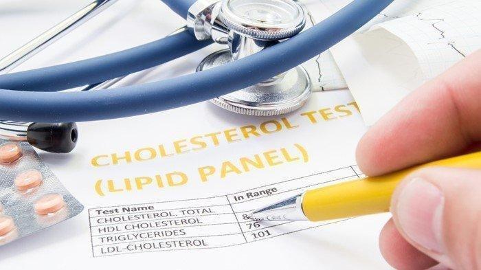 Kadar kolesterol yang tinggi dapat meningkatkan risiko penyakit jantung. Kolesterol yang tinggi bisa memicu timbunan lemak di pembuluh darah.