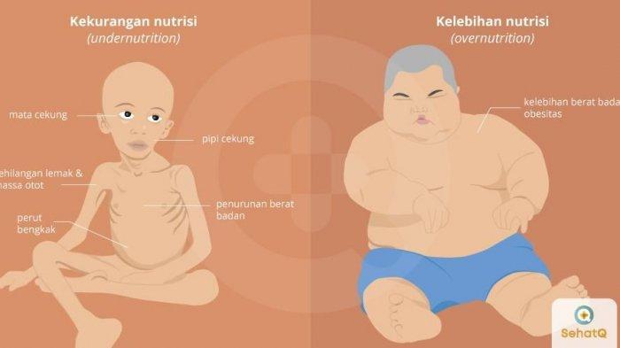 ilustrasi malnutrisi