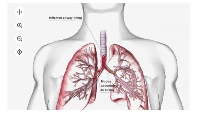 Foto: ilustrasi pneumonia. Kedutaan besar Cina di Kazakhstan melaporkan adanya kasus