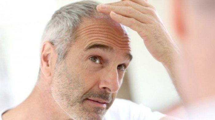 Ilustrasi gatal di rambut