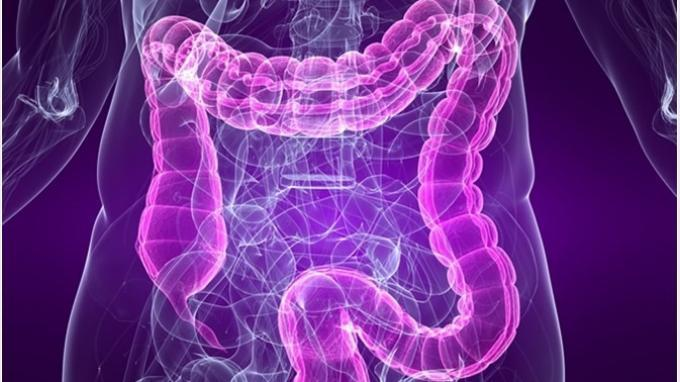 Irritable Bowel Syndrome/ IBS