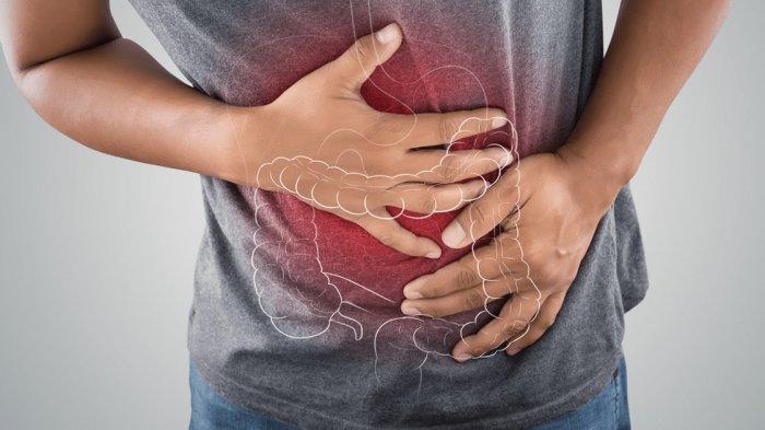 irritable-bowel-syndrome.jpg