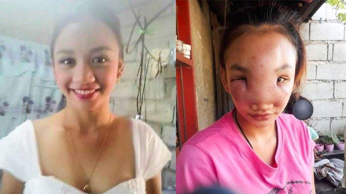 Wajah Mary Ann Regacho, sebelum dan sesudah pembengkakan gara-gara memencet jerawat di hidung. Wanita berusia 17 tahun ini kehilangan penglihatan mata kanannya setelah pembengkakan menyebar di seluruh wajahnya.