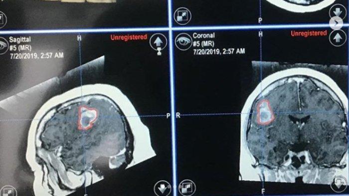kanker-otak.jpg