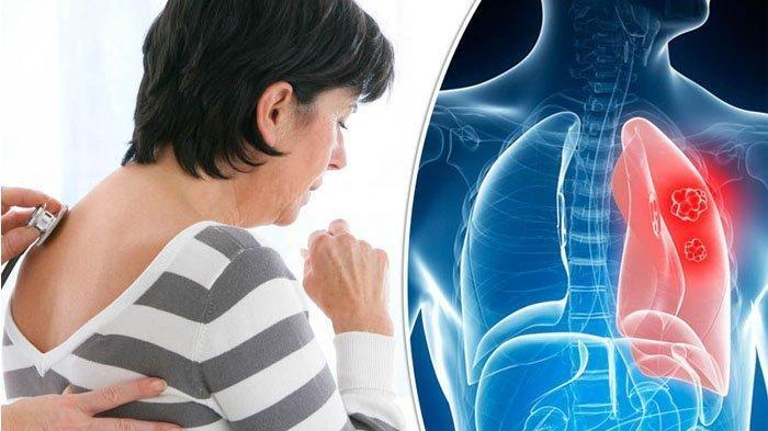 ILUSTRASI orang sakit paru-paru