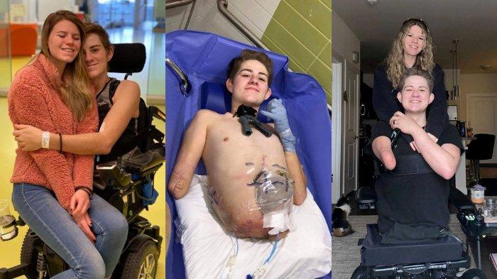 loren-schauers-setelah-operasi-amputasi-separuh-tubuhnya-54646.jpg