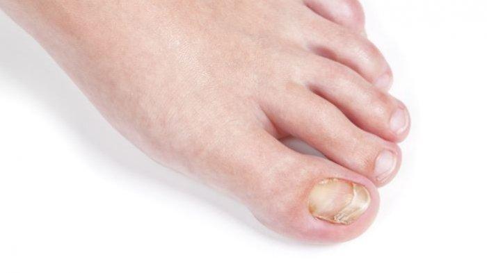 Onychomicosis adalah infeksi kuku jamur