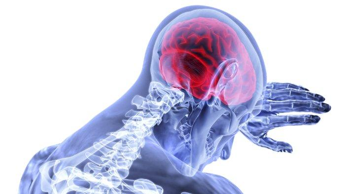 Ilustrasi stroke yang disebabkan oleh terganggunya pasokan darah ke otak