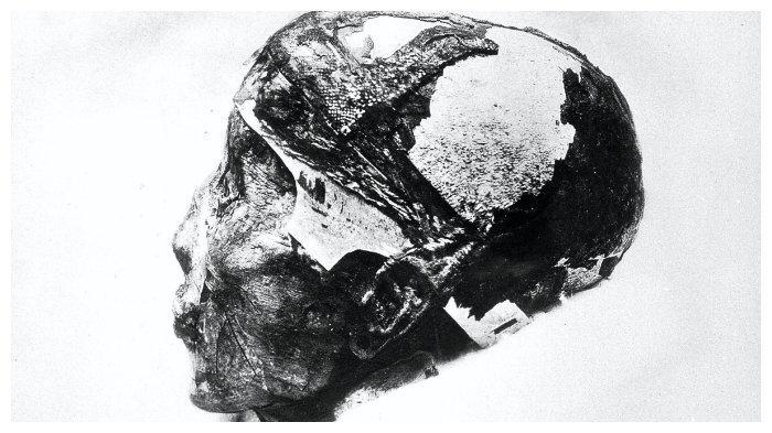 Tengkorak Tutankhamun