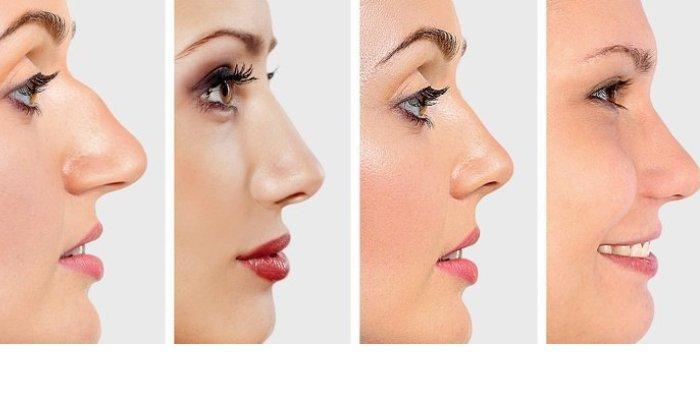 Tes Kepribadian Bentuk Hidungmu Mengungkap Karakter Tersembunyimu Lihat Hasilnya Halaman All Tribunnewswiki Com Mobile