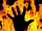 Detik-detik Perawat di Malang Dibakar Hidup-hidup di Dalam Klinik, Pelaku Siram Cairan Kimia