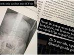 viral-foto-x-ray-ratusan-jarum-diduga-susuk-1.jpg