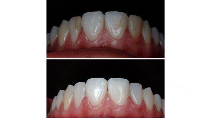 Gigi menguning di lapisan dentin