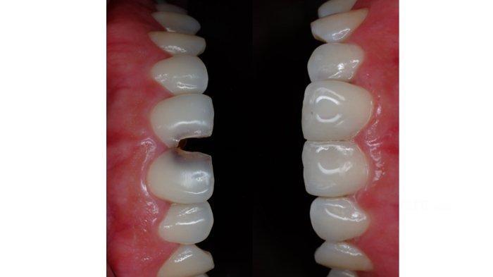 Gigi rusak pada celah gigi seri dan setelah ditambal
