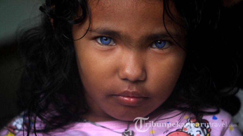 dzakira-azizy-naqiya-gadis-mungil-bermata-biru-asal-pekanbaru.jpg
