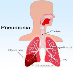Kenali Gejala Pneumonia Pada Anak