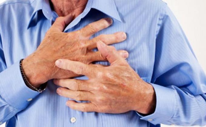 Mengantisipasi Risiko Terkena Stroke dengan Mengenali Penyebabnya
