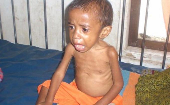 Minim Air Bersih dan Kurang Asupan Gizi, Banyak Bayi dan Anak-Anak di Tangerang Alami Gizi Buruk