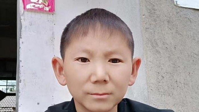 Sosok Pria Terperangkap di Tubuh Bocah 6 Tahun Dampak Hantaman Batu di Kepala Saat Masih Kecil