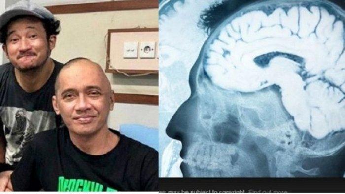 Agung Hercules Meninggal karena Kanker Otak, Orang yang Bekerja di Tempat Ini Sangat Beresiko