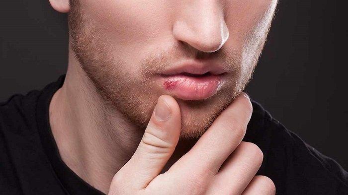 Bibir Kering,  Pecah-pecah, dan Melepuh Akibat Terserang Virus, Ada 4 Cara Mengatasinya