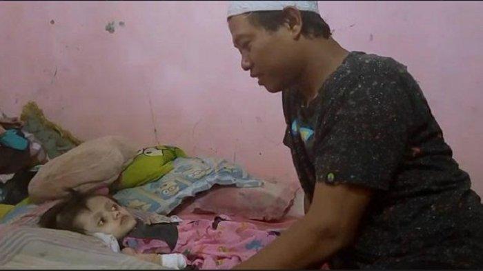 Orang Tua Tak Mampu Bocah Pengidap Hydrocephalus di Depok Cuma Bisa Terbaring Lemah