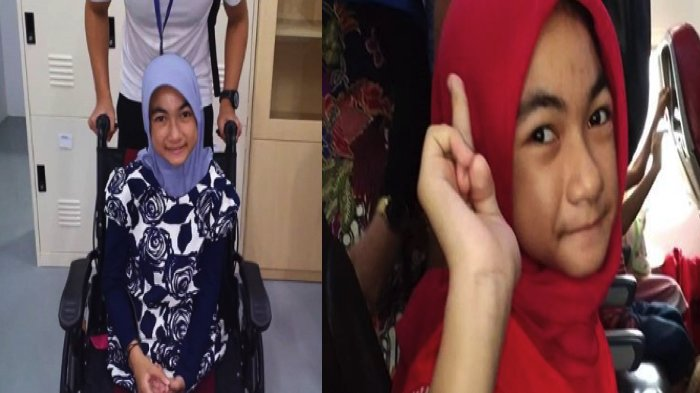 Gadis di Kursi Roda yang Menarik Perhatian Bersama Jokowi di Asian Para Games, Ingin Jadi Model