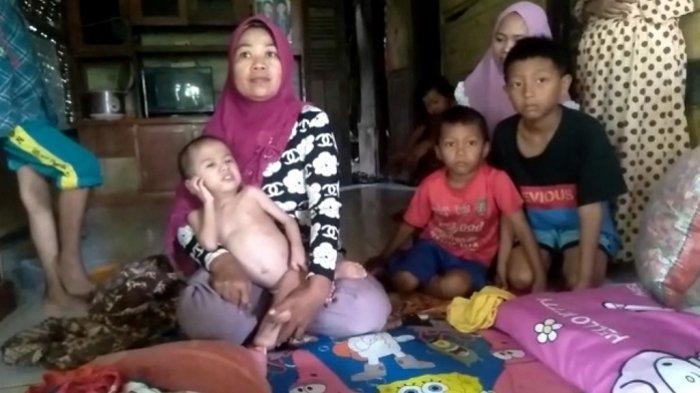Muhamad Oji (6) anak yang mengalami gizi buruk