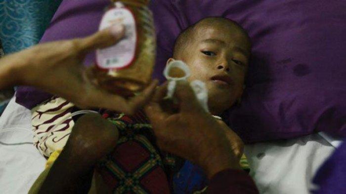 Kasihan Anak Yatim Piatu Beratnya Hanya 8 Kg karena Gizi Buruk