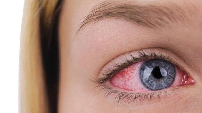 Benarkah Sakit Mata Menjadi Gejala Baru Covid-19? Berikut Ini Penjelasan Lengkap Peneliti