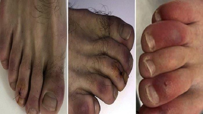 Ilustrasi ciri pasien Covid-19, yakni jari kaki berubah menjadi ungu.