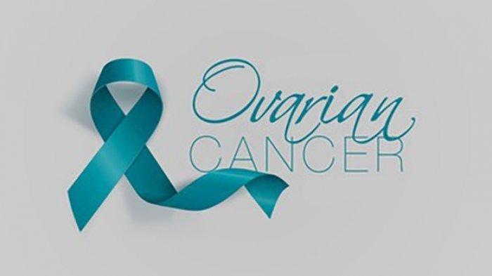 Waspada Kembung dan Nyeri Perut Jadi Tanda-tanda Kanker Ovarium