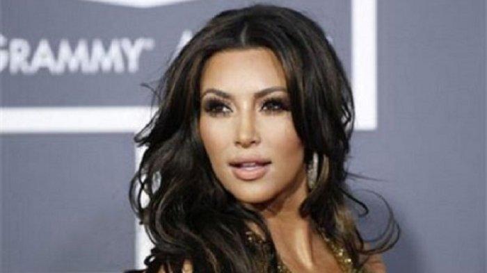 Kim Kardashian Akui Derita Lupus dan Radang Sendi