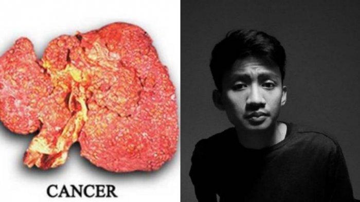 Komedian Gebi Ramadhan Meninggal karena Kanker Hati, Begini Gejalanya