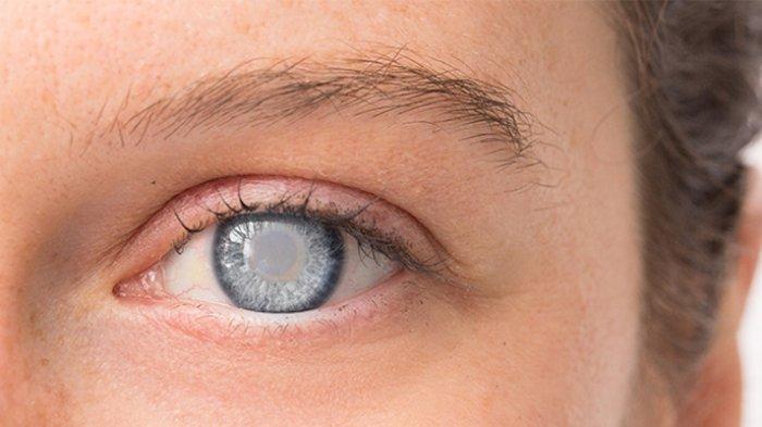 Kunjungan Pasien Glaukoma ke RS Turun Bisa Tingkatkan Risiko Buta Permanen dan Kerusakan Saraf