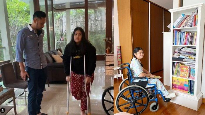 Almira Tunggadewi Yudhoyono Alami Patah Tulang, Cucu SBY Beraktifitas Pakai Tongkat dan Kursi Roda