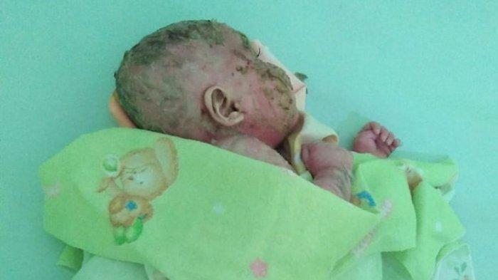 Derita Bayi Berkulit Plastik Saat Mengelupas Bikin Nangis Sampai Benjolan Nanah di Ketiak