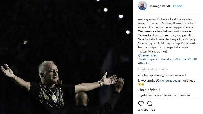 Ribuan Dukungan Suporter untuk Mario Gomez di Akun Instagram