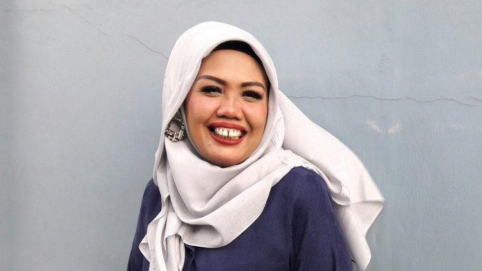 TERUNGKAP Ely Sugigi Tak Risau Kehilangan Job Usai Potong Gigi, Netizen: Rezeki Bukan karena Gigi