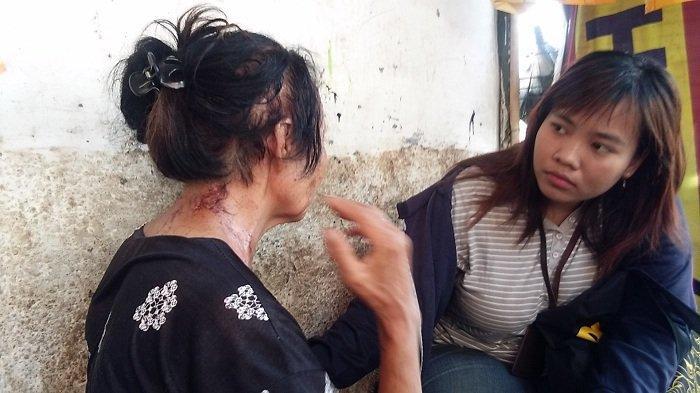 Terungkap Ini Penyebab Penyiram Cairan Kimia Berupa Air Soda Api Selalu Memilih Korban Perempuan