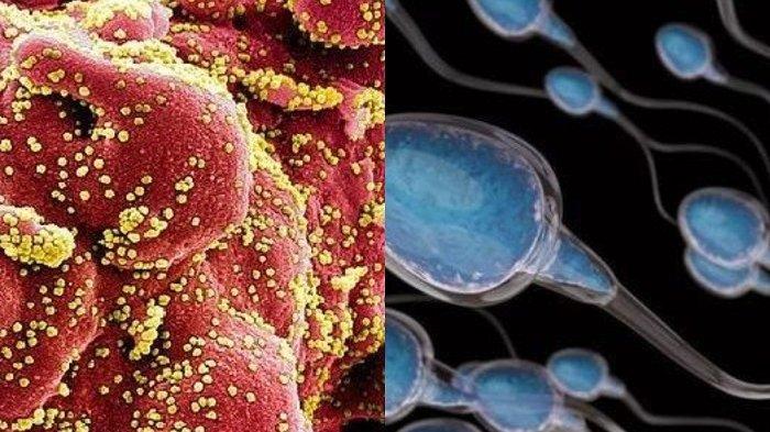 FAKTA Baru Ditemukan Peneliti China, Virus Corona Hidup di Sperma dan Bisa Menular Lewat Senggama