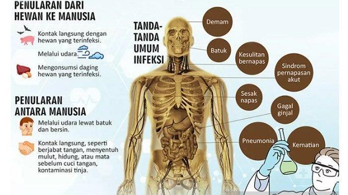 Waspadai Penyebaran Virus Corona, Dinkes Kabupaten Bogor Sebar Surat Edaran ke RS dan Puskesmas