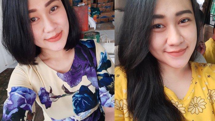 GEGER! Perawat Cantik di Malang Disiram Cairan Kimia Lalu Dibakar Oleh Orang Tak Dikenal