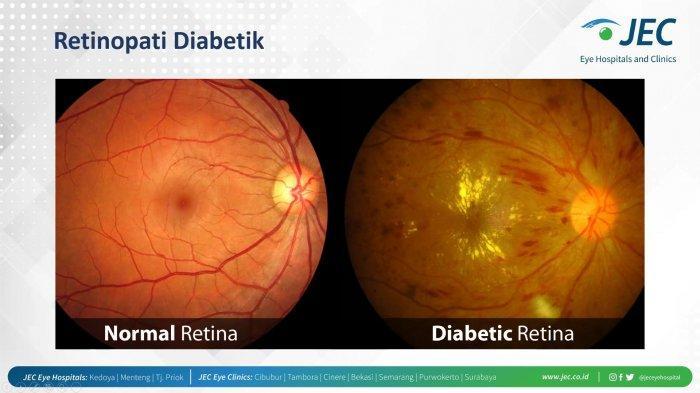 Waspada, Penderita Diabetes Beresiko Tinggi Alami Gangguan Penglihatan Hingga Kebutaan