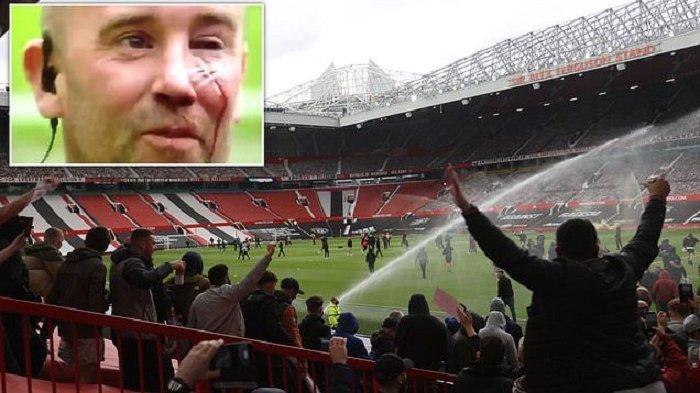 FANS Manchester United Makin Brutal, Wajah Polisi Disayat dan Nyaris Buta dalam Protes Anti-Glazer