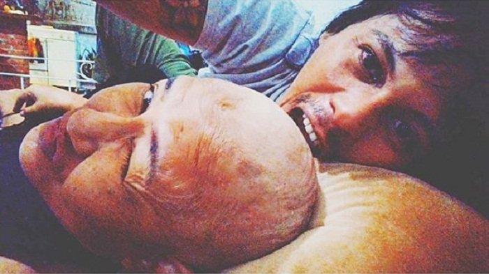 Setia Temani Ria Irawan Hadapi Kanker, Sosok Mayke Disebut Suami Idaman