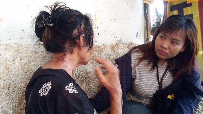 UPDATE Korban Penyerangan Teror Cairan Kimia Selalu Warga Biasa, Ini Pengamatan Kriminolog