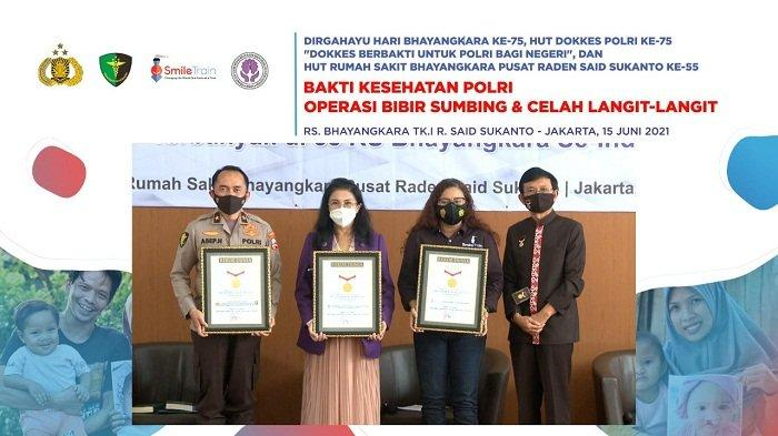 Kolaborasi Smile Train, Pusdokkes Polri, dan Perapi Gelar Operasi Bibir Sumbing Gratis 1.000 Anak