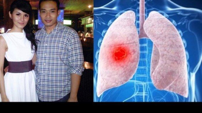 Suami Intan RJ Meninggal karena Infeksi Paru-paru, Sekilas Gejalanya Mirip COVID-19